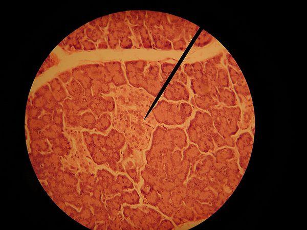 Бета-клетките на панкреасот