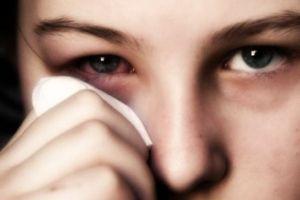 Аллергический конъюнктивит: лечение, симптомы, причины, признаки