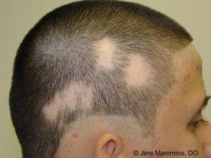 Alopecia areata: Léčba
