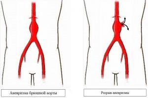 Abdominalne aorte anevrizma (trebuhu oddelek): simptomi, zdravljenje, diagnozo, vzroki, simptomi