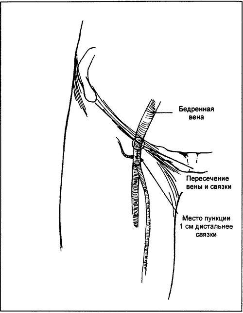 Připojit 18-gauge jehly vpich do 5 ml injekční stříkačky a propíchnutí kůže anestezovaných, nasávání tlačit jehlu do směru cephalad v úhlu 45 ° k povrchu kůže rovnoběžně s pulsující tepny. Riziko z mediálního přístupu do žíly je menší v porovnání s boční
