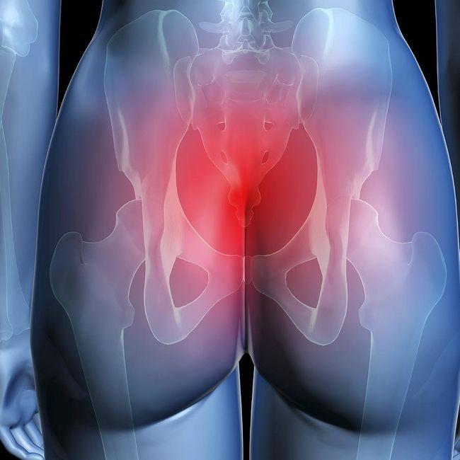 Хемороиди дава препоните