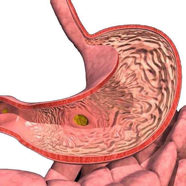 Co je gastritida, její typy, příčiny, příznaky, symptomy, diagnóza, léčba
