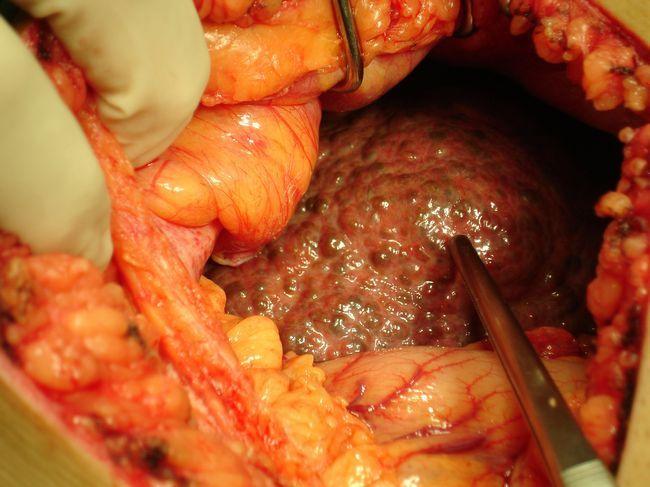 Цироза на панкреасот