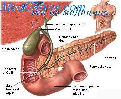 эктопическая беременность