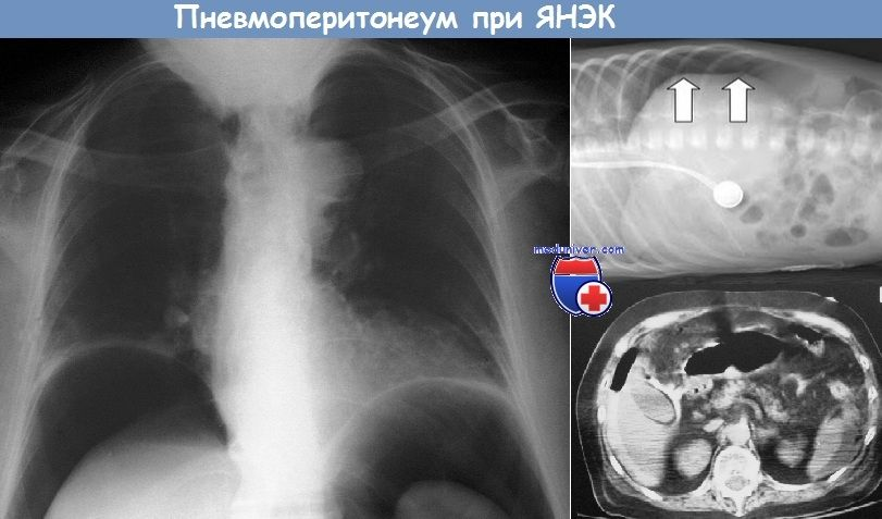 Pneumoperitoneum la YANEK