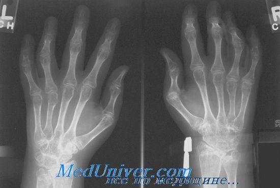 Дифференциация ювенильного ревматоидного артрита у детей