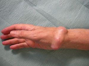 Tumorile benigne ale osului si perie cartilaj: etapa, tratament, simptome, cauze, simptome