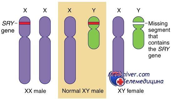 Генные нарушения развития гонад. Гены sry, wt1 и синдромы фрейзера и дени-дреша