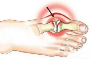 Hydroxyapatit arthropathy: symptomy, příčiny, léčba, symptomy