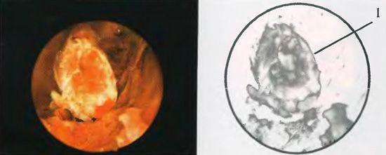 Плацента одложување фрагмент