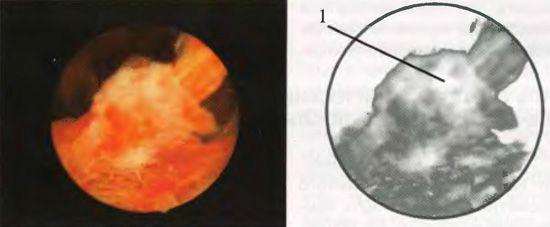 плацентарна полип