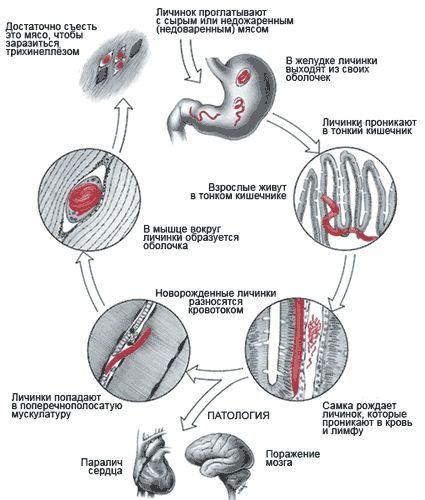 Глисты в мышцах