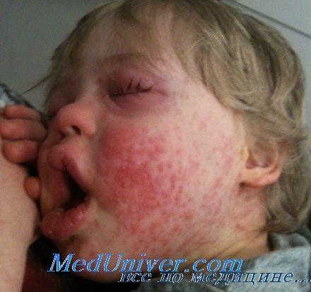 глукокортикоиди алергии