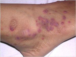 granulomatoza Wegener: simptome, tratament, diagnostic, prognostic, cauzele