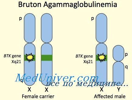 X-vezani agammaglobulinemia. Brutonovskaya agammaglobulinemia djecu
