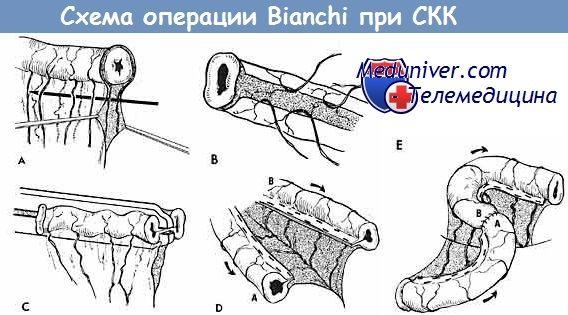 Хирургическое лечение синдрома короткой кишки (скк) варианты