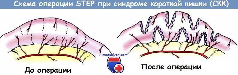 Схема операции STEP при синдроме короткой кишки (СКК)