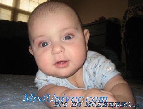 Kronično zatajenje bubrega u djece. razlozi