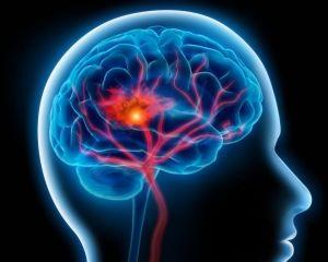 Infarctul maduvei spinarii: a simptomelor, tratamentul, cauzele, prognosticul