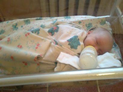 Заразни болести папочната рана кај новороденчињата
