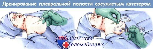 Nouzové větrání z pohrudniční dutiny novorozence