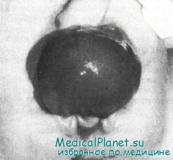Экстрофия мочевого пузыря у детей. Диагностика и лечение