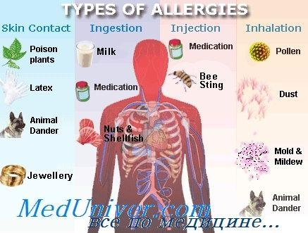 Эпидемиология (распространенность) аллергических заболеваний атопий