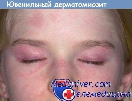 Јувенилен дерматомиозитис. Причината