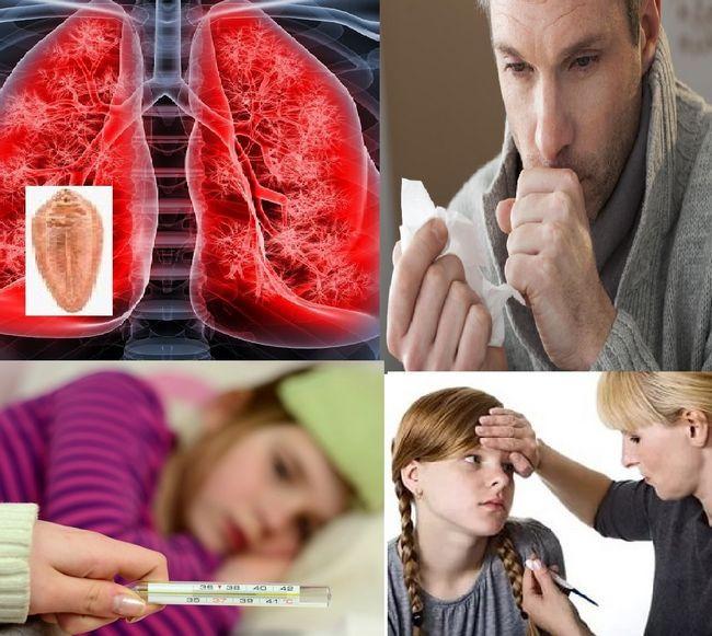 Симптомите на кашлица од црви