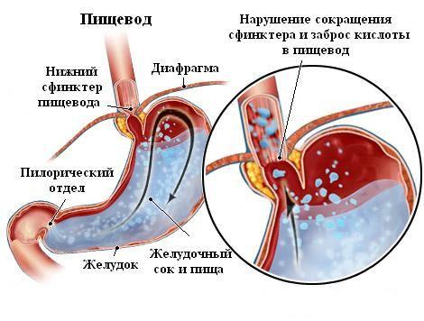 Razvrstitev ezofagitisa