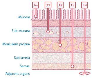Рак желудка - классификация