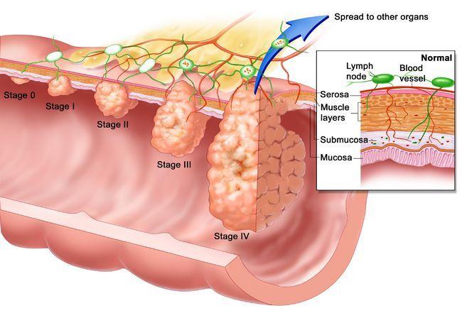 TNM рак желудка