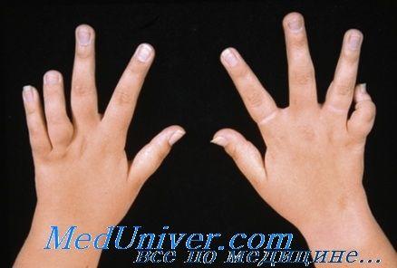Клиника и диагностика ювенильного ревматоидного артрита у детей