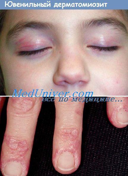 Клиника и симптоми на јувенилен дерматомиозитис