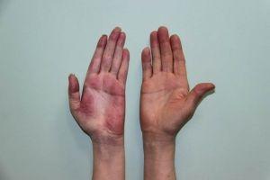 Sindromul durerii regionale complexe (CRPS), tipul 1 și 2: tratament, prognostic, cauzele
