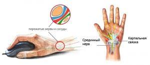 Compresia nervului ulnar la nivelul încheieturii mâinii: Tratamentul, cauze, simptome