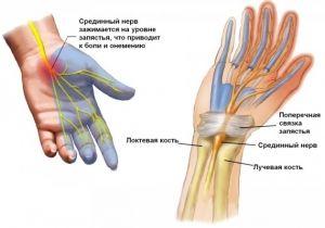 Compresia nervului median