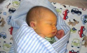Cutanate și vasculare modificări la nou-născuți