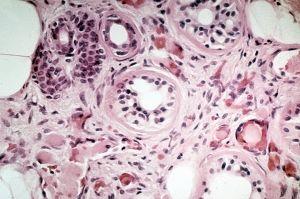Cryoglobulinemia: simptomi, liječenje