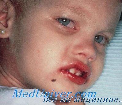 Третман на Кавасаки болест кај децата. Outlook