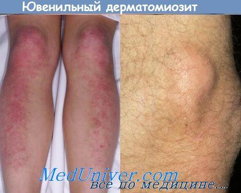 Третман на јувенилен дерматомиозитис. Outlook