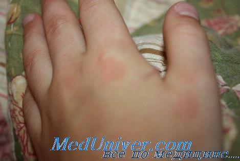 Лечење на јувенилен ревматоиден артритис кај деца. Outlook