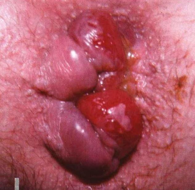 Воспаление геморроя при беременности