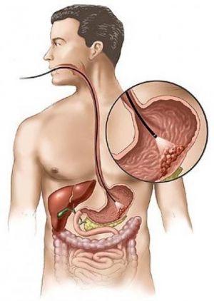 Limfomul a stomacului și de colon: tratament Pronoza, semne, simptome, cauze