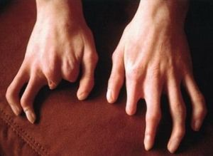 Makrodaktiliya: prevenire, tratament, cauze, simptome