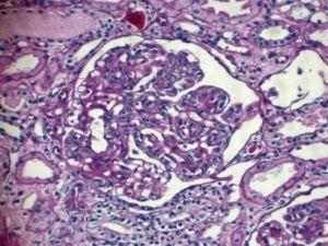 Membranoproliferative glomerulonefritis: prognozu, liječenje, simptomi, uzroci, simptomi
