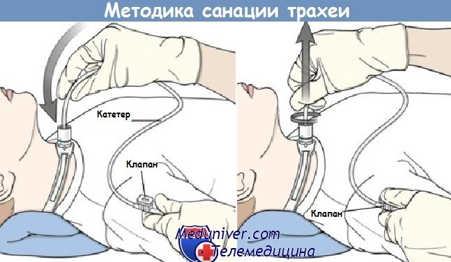 Péče o tracheostomické trubice novorozeně