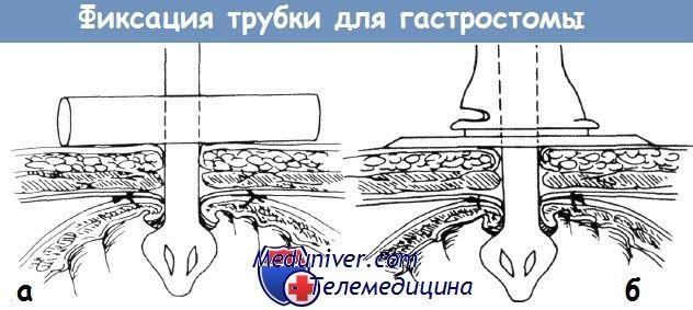 Výměna gastrostomie trubka gastrostomie