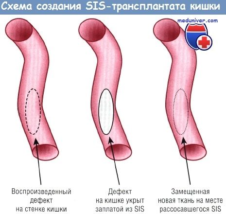 Методы выращивания кишечника для лечения скк достижения интестинальной тканевой инженерии